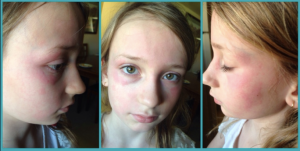 breakout after face peel chemical reaction